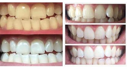 Afbeeldingen van Tandenbleken