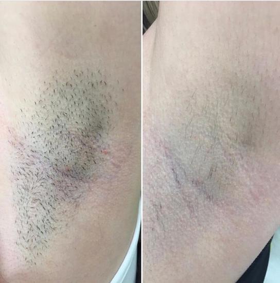 Afbeelding van 1 jaar oksel onbeperkt met laser