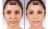 Afbeelding van Luxe gezichtsbehandeling met Hoog Frequentie apparaat.